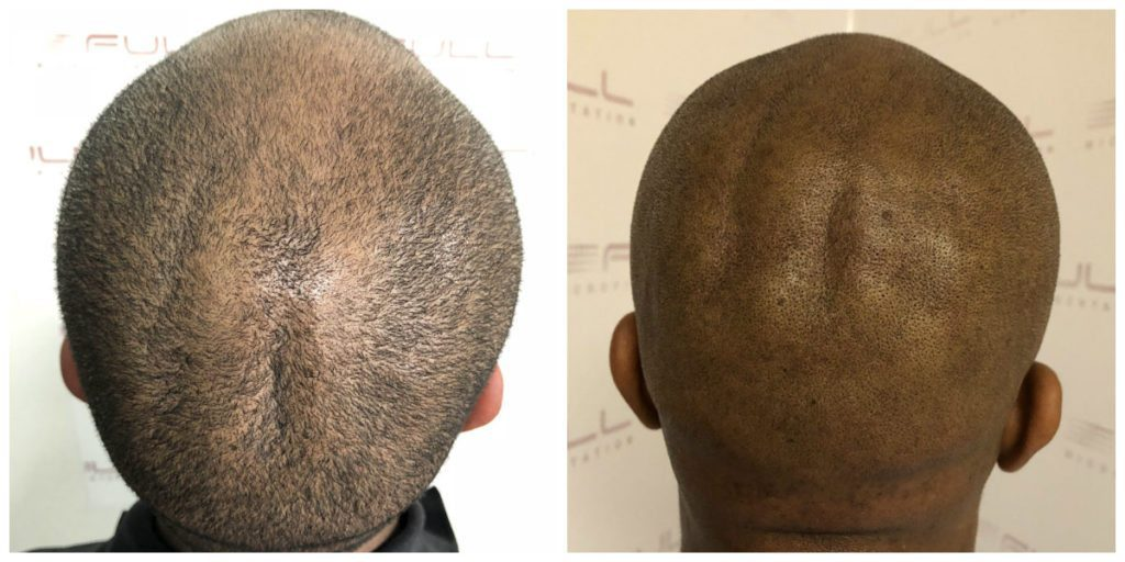 Sulaimon Scalp Micropigmentation Before and After 5