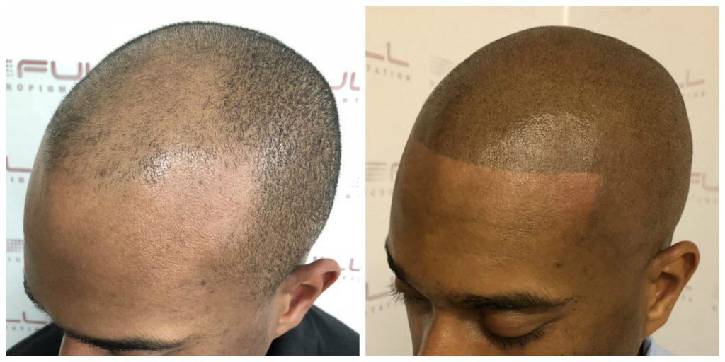 Sulaimon Scalp Micropigmentation Before and After 6