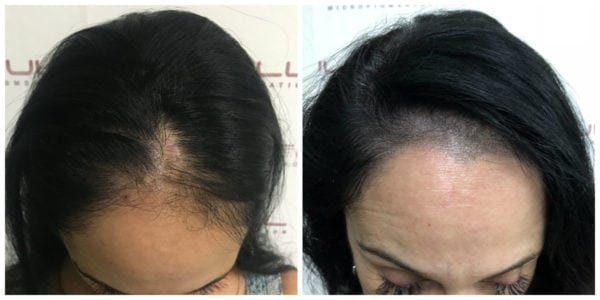 Scalp Micropigmentation For Women - Connie BA front