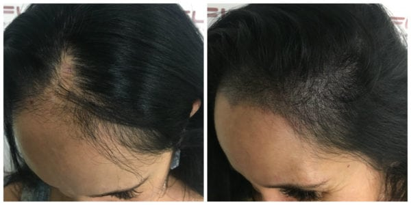 Scalp Micropigmentation For Women - Connie BA left side