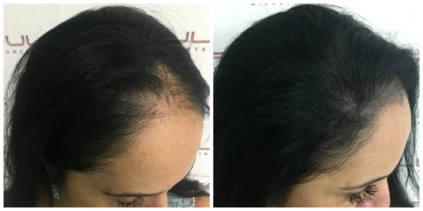 Scalp Micropigmentation For Women - Connie BA right side