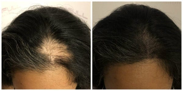 Alopecia Areata Hair Loss Treatment by Full Micropigmentation