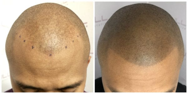 Ronen-New-Before-After-1