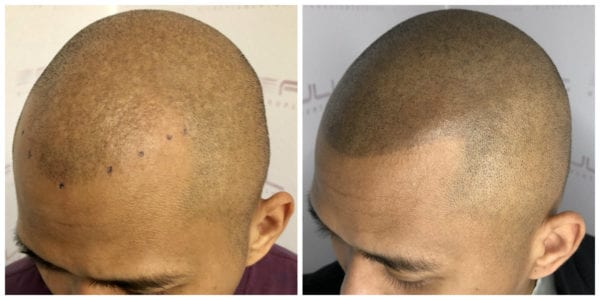 Ronen-New-Before-After-2
