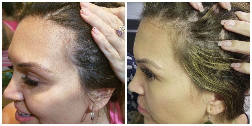 Jamie BA 2 PRP for hair growth