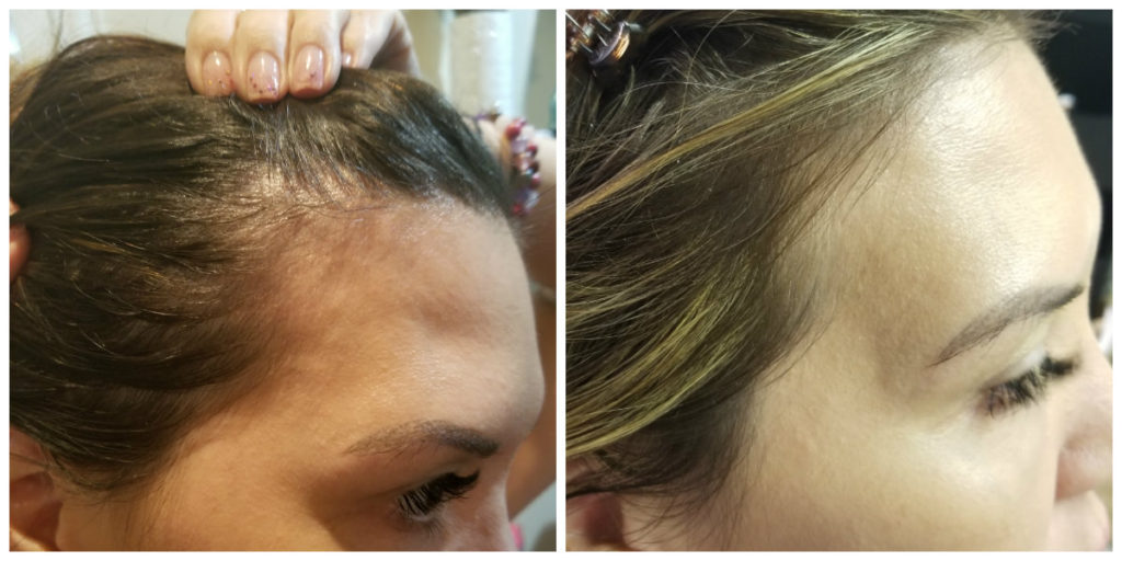 Jamie BA 3 PRP for hair growth