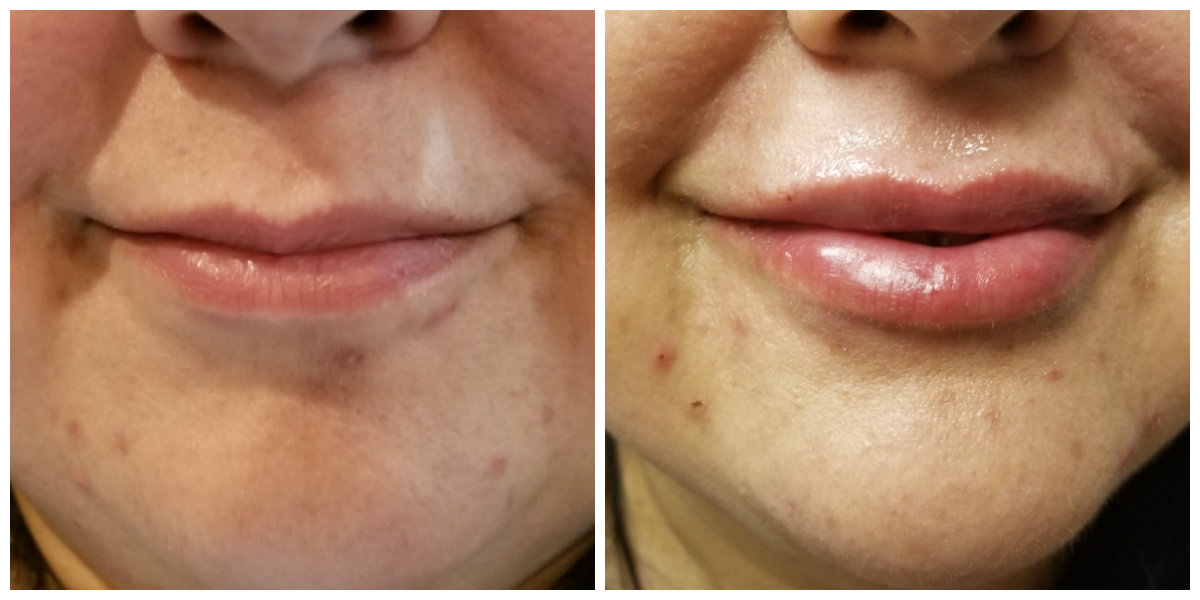 Lip fillers - before and after - Majestic Beauty Spa
